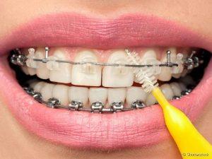 limpeza dental com aparelho ortodontico