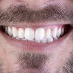 7 Coisas que Você Deveria Saber sobre Lentes de Contato Dental
