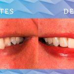 Antes e depois das Facetas de Porcelana – casos clínicos
