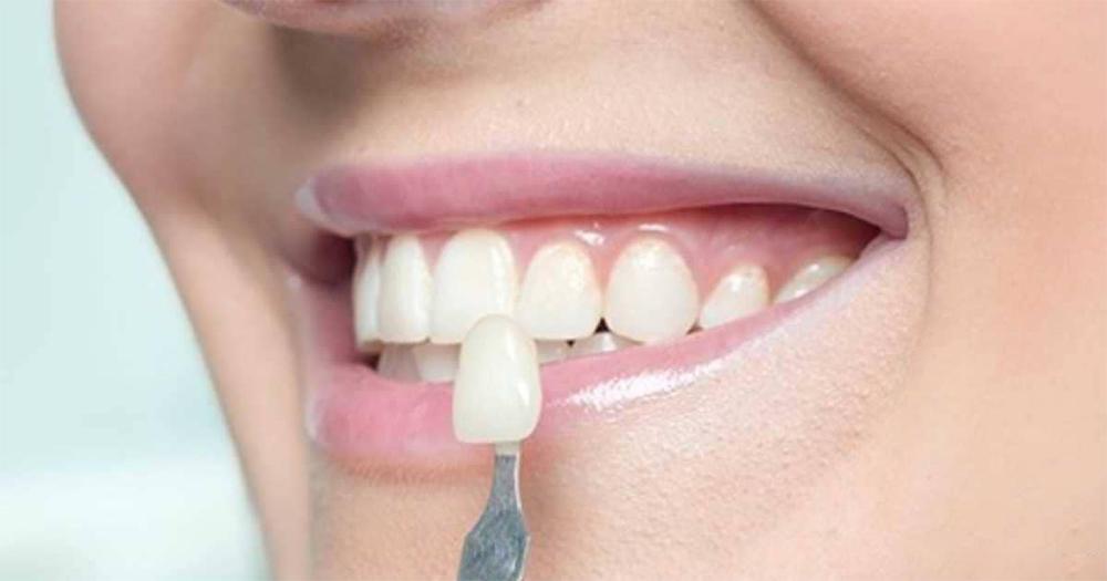 lente-de-contato-dental-destaque