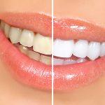 Como saber se eu preciso da odontologia estética?