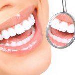 Lente de contato dental precisa de manutenção?