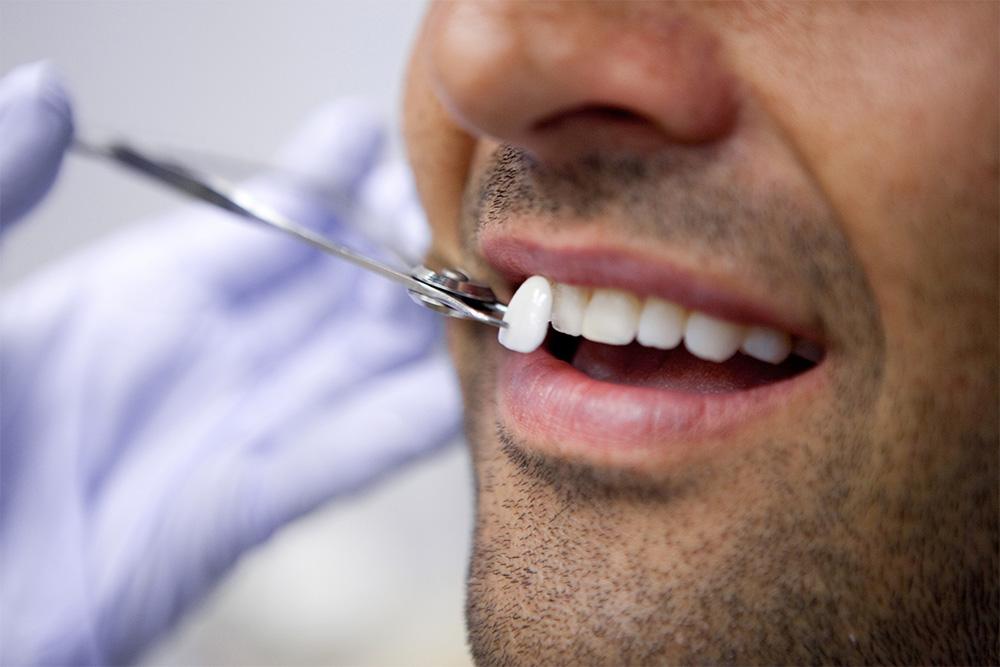 Quanto é uma lente de contato para os dentes?