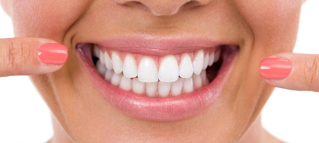 tratamento facetas ou lentes de contato dentais