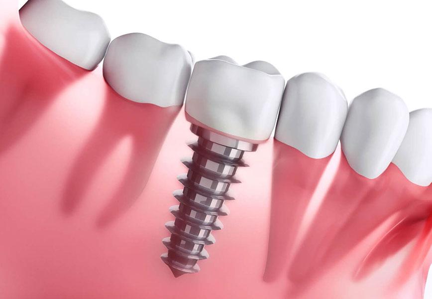 ilustração de uma boca mostrando detalhe do implante dentário