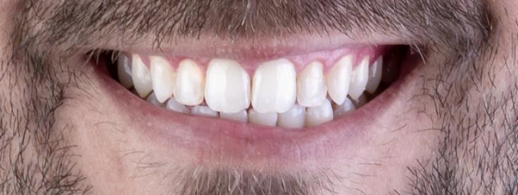 e8b9948ca4db2 7 Coisas que Você Deveria Saber sobre Lentes de Contato Dental ...